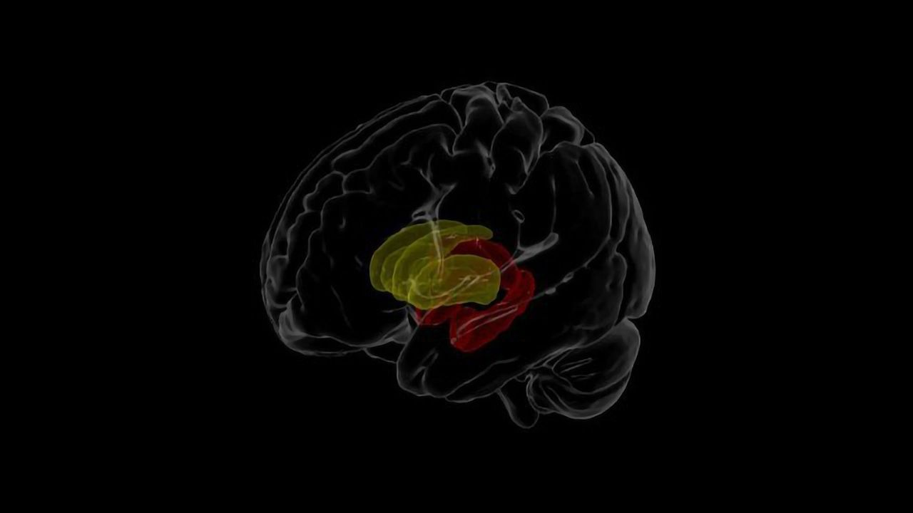 Imaging Study Assesses Brain Differences in People Living With HIV
