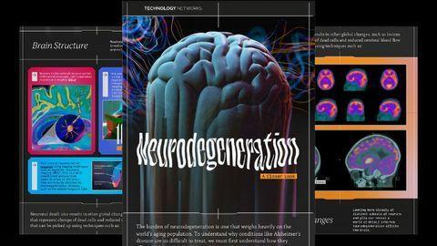 Neurodegeneration: A Closer Look