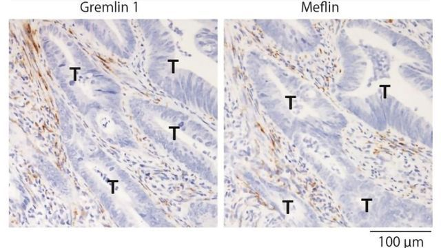 Potential Therapeutic Targets To Inhibit Colorectal Cancer Progression