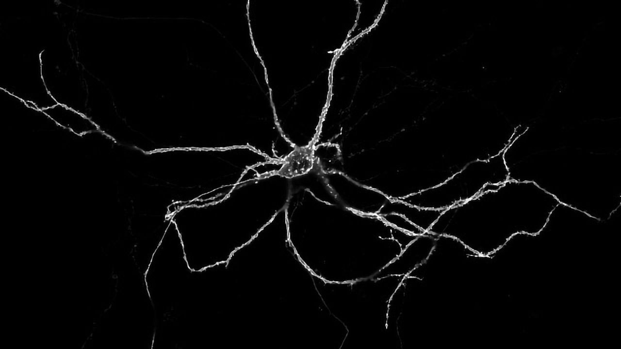 """""""String of Lights"""" Imaging Technique Tracks Neurons at Work"""