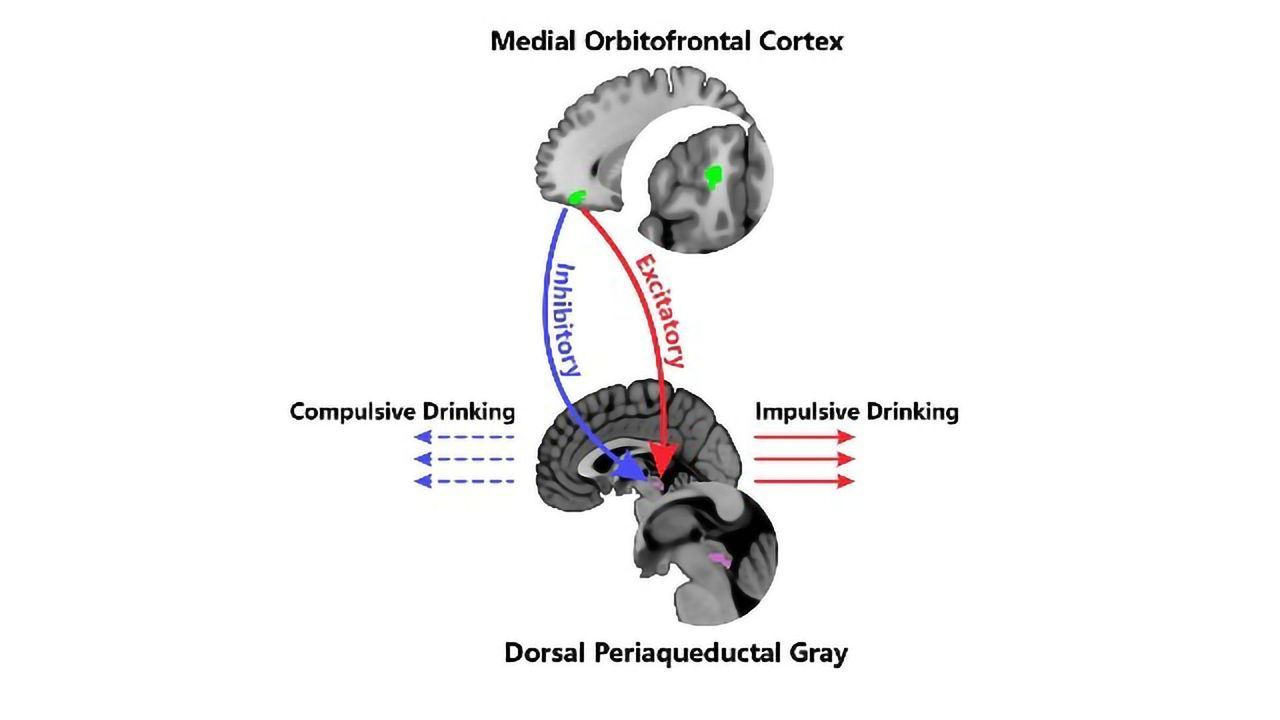 Identified: The Neural Roots of Alcoholism