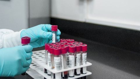 Researchers Advance Simple and Inexpensive Diagnostic Blood Test