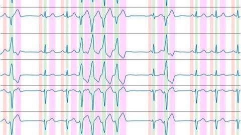 New Algorithm Can Automate ECG Recording