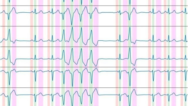 New Algorithm Can Automate ECG Recording