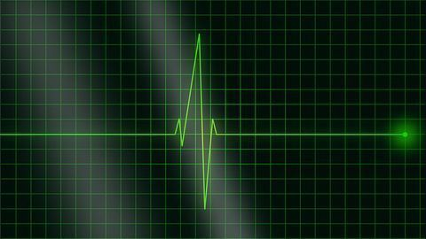 Heart Function Test Helps To Reduce Risk of Chemo-Induced Heart Damage