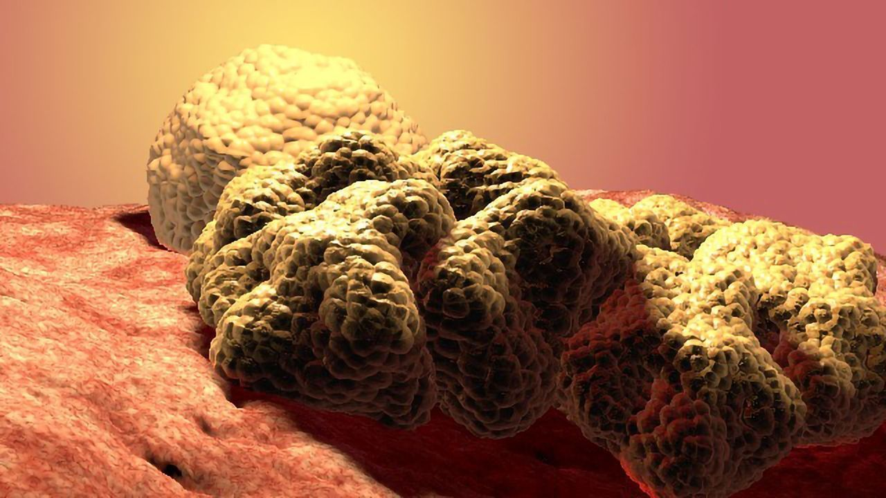 Cancer Cells Deform To Squeeze Past Neighboring Cells