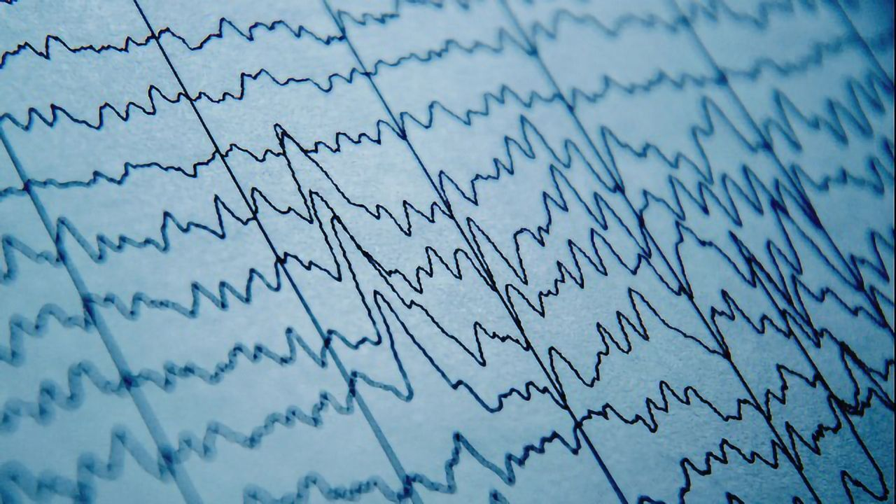 Finding Order in the Chaos of Mass Neuronal Firing