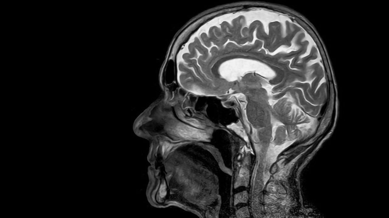 Stroke of Luck: Therapeutic Target Discovered in Blood–Brain Barrier