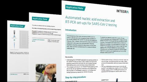 Automated Nucleic Acid Extraction and RT-PCR Set-Ups for SARS-CoV-2 Testing