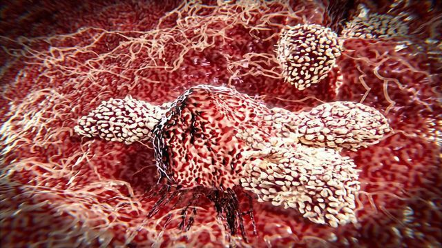 The Promise of Natural Killer Cells
