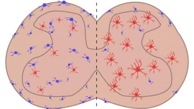 Cell Type Implicated in Chronic Pain Identified