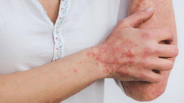 Chronic Skin Inflammation Molecular Mechanisms Identified