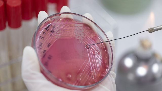 How Can Artificial Intelligence Stop the Spread of Antimicrobial Resistance?