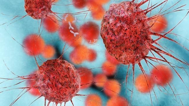 Insight Into a Key Mechanism Involved in Cancer Metastasis