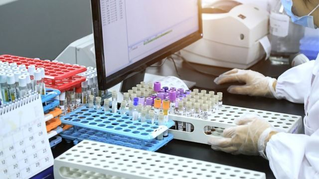 Considerations When Selecting a LIMS