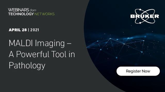 MALDI Imaging – A Powerful Tool in Pathology