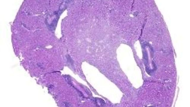 Immune Cells That Contribute to Transplant Rejection Identified