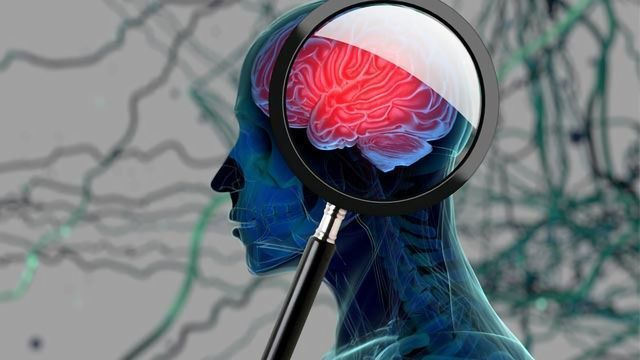 Brain Aging Accelerated by Anabolic Androgenic Steroids