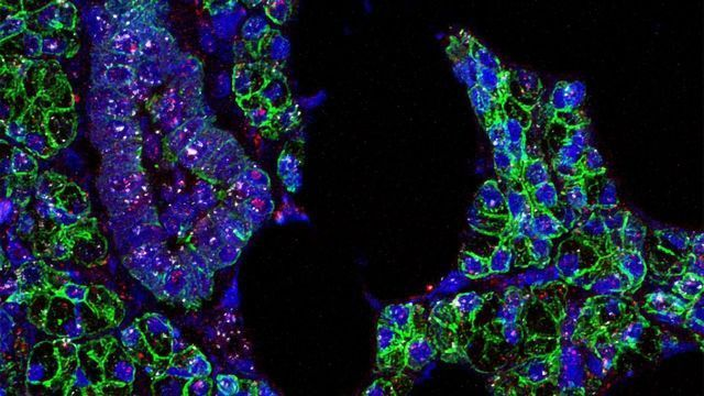 SARS-CoV-2 Infects Cells in the Mouth, Study Shows