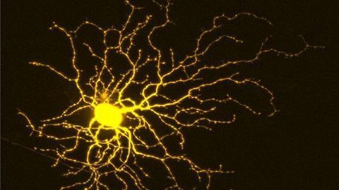 Retinal Ganglion Cell
