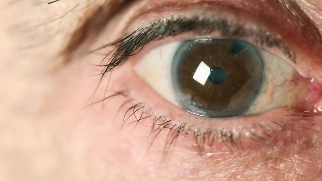 Low-Tension Glaucoma Linked to Cognitive Impairment