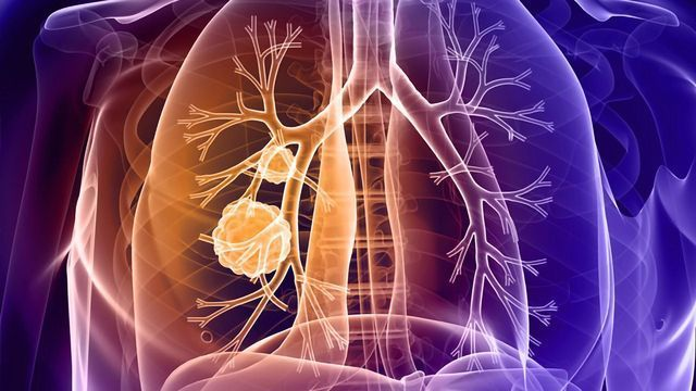 Insights Into Resistance to Immune Checkpoint Inhibitors in Lung Cancer