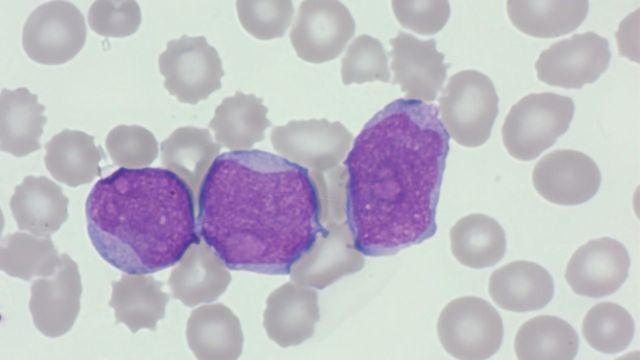 HORIBA Medical To Present Webinar Discussing Blood Cell Morphology Basics