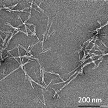 新方法直接测量淀粉样蛋白原纤维的生长速率