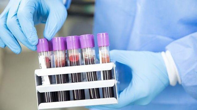 嗜酸性粒细胞在流感期间跳进动作