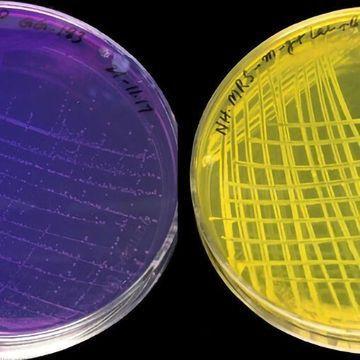 常见益生菌的变化可以帮助婴儿出现肠道问题