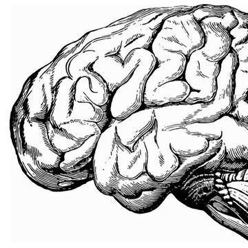 阿尔茨海默病的四个不同的亚型