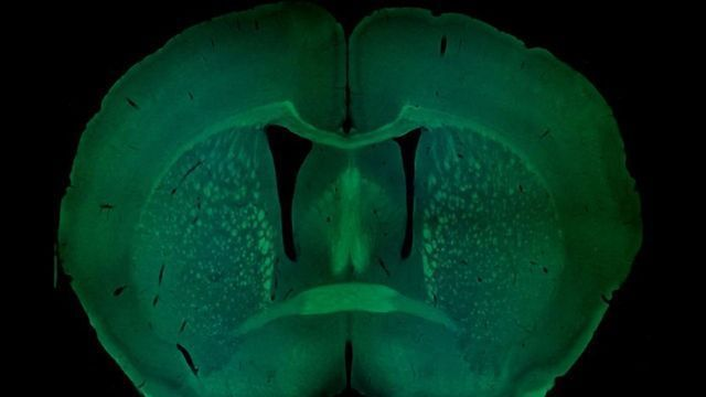 Sex-Specific Genetics of Autism Explored in Mice