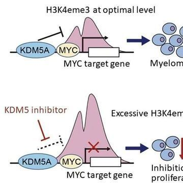 New Epigenetic Mechanisms Involved in Multiple Myeloma Growth