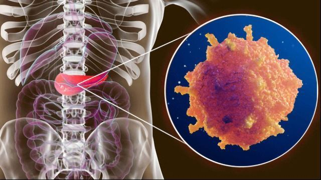 Shedding Light on Mechanisms of Metastasis in Pancreatic Cancer