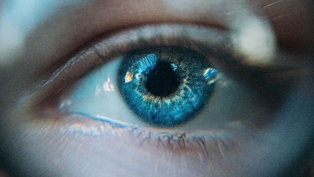 Optogenetic Therapy Partially Restores Vision in a Blind Patient