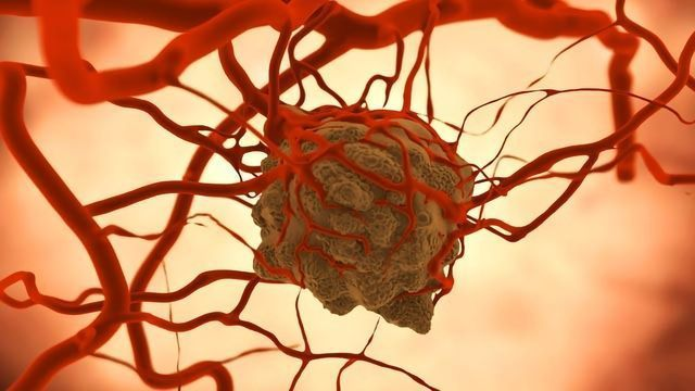 Tumor Models Developed To Test Different Treatments
