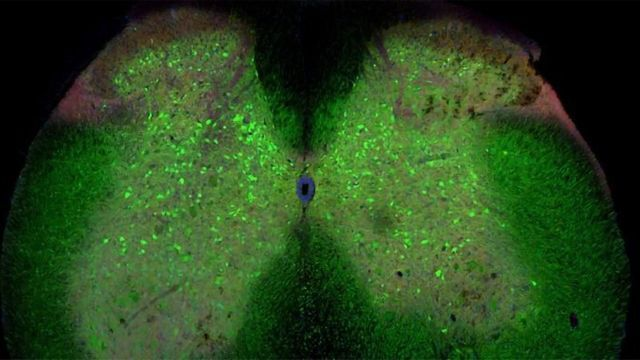 Loss of Spinal Cord Connections May Trigger ALS