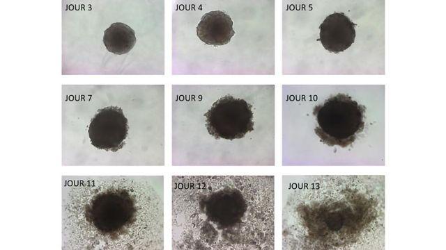 Omega-3 Fatty Acid Kills Tumor Cells in Culture