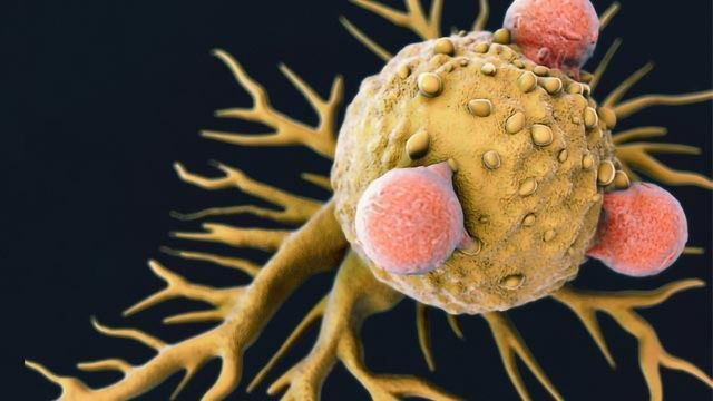 """Exploiting the Body's """"Natural Killers"""" To Target Breast Cancer"""