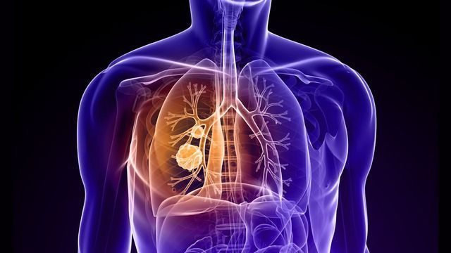 Immune Cells Tricked Into Helping Tumors Invade the Lungs