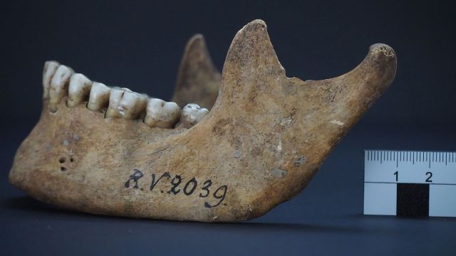 Earliest Strain of Bubonic Plague Bacteria Identified in Neolithic Site
