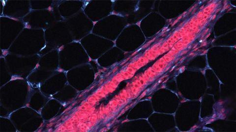 Mammary Tissue Cells