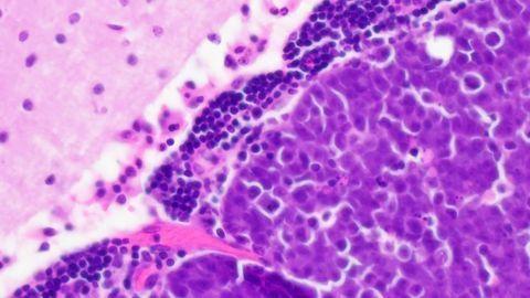 Medulloblastoma in the Mouse Cerebellum