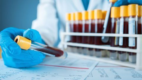 Fundamentals of Therapeutic Drug Monitoring: Definition, Importance and Methods