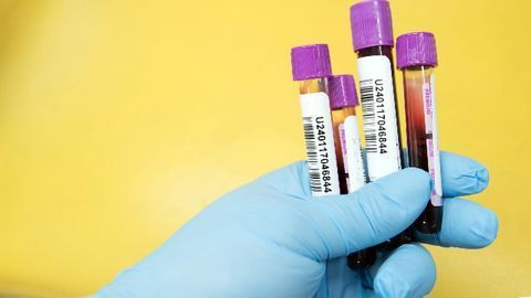 Biomarker Could Help Diagnose Schizophrenia at an Early Age