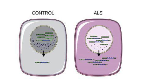 Key ALS Marker Reversed in Stem Cell Study