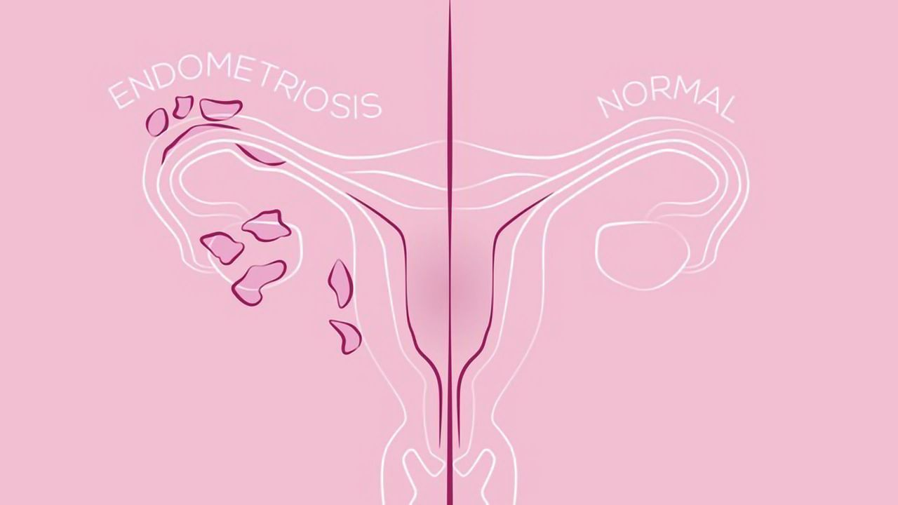 A New Drug Target for Endometriosis Treatment?