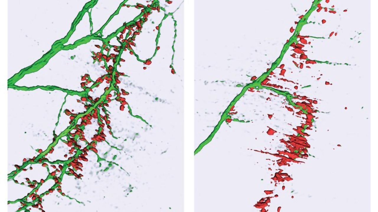 Subtle MicroRNA Changes May Lead to ALS