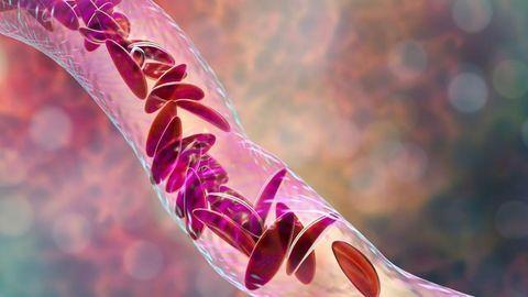 Can CRISPR Cure Sickle Cell Disease?