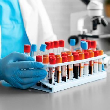 What Is New in Disease Biomarker Discovery?